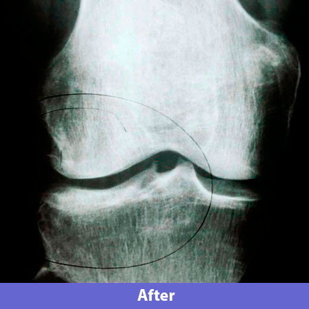 x-ray_after